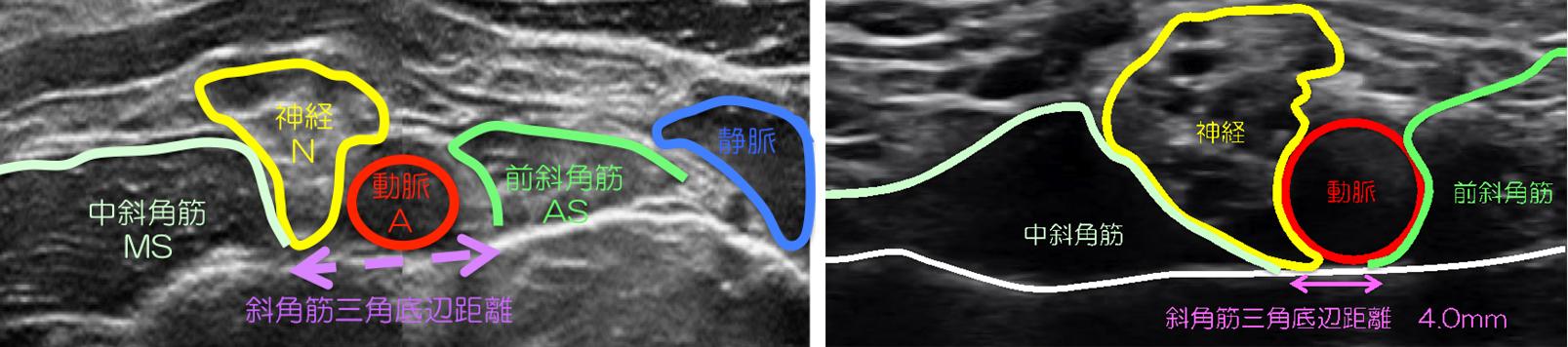出口 症候群 胸郭